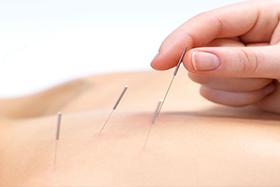 healingartstherapies-acu